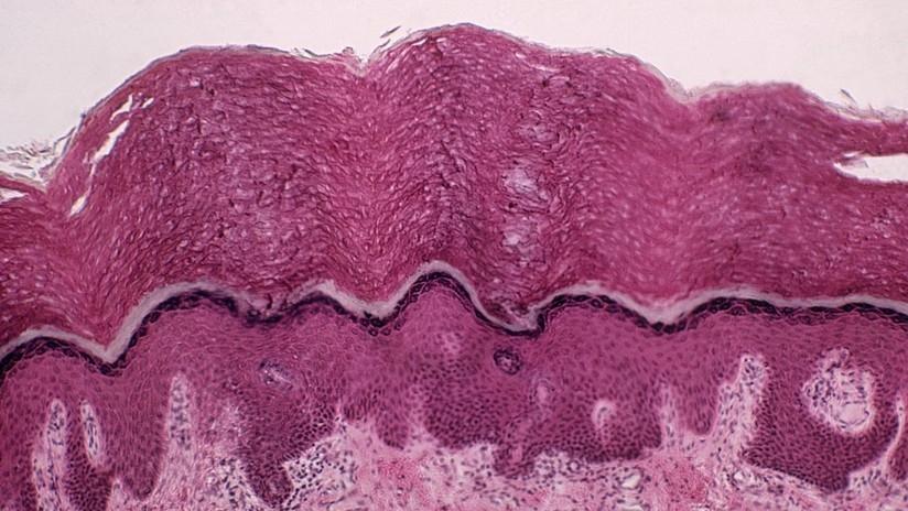 Descubren nuevo tejido con un rol importante en la propagación del cáncer