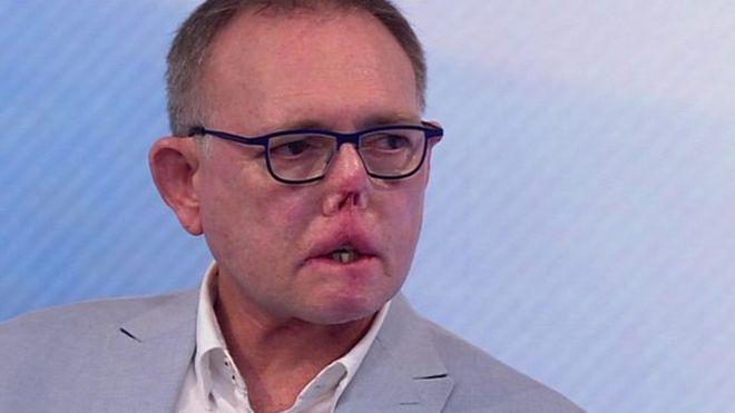 Un hombre perdió sus piernas por una infección trasmitida por su perro