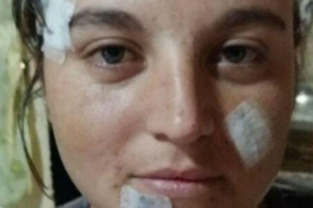 Despechada le cortó la cara a la novia de su ex